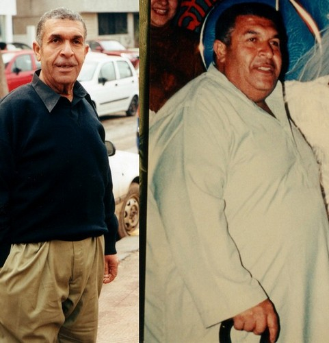 Aly Makhlof was a 62 years old man who became nonambulant. He now thinks the OS he had 6 years agosurgery ago made him 30 years younger. (obesity surgery is usually indicated at the age between 18-55 years of age. We have studied the extremes of age in selected cases 9-72 years old with very good results)