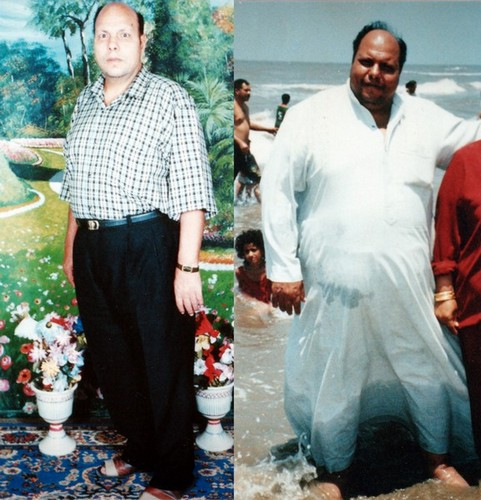 Mustafa changed from a BMI of 62 Kg/m2  to a BMI of 30 kg/m2 over 18 months period