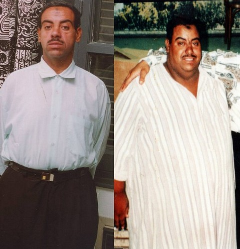 Saeed at the age of 28 weighed 200 kgs (450 lbs) and was unable to sleep flat. Now 10 years after surgery his weight is stable at 80 kgs (180 lbs) he is now married with a lovely 5 year old daughter. He admits that surgery has saved  his life.